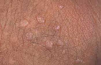 picture of genital wart vaginal